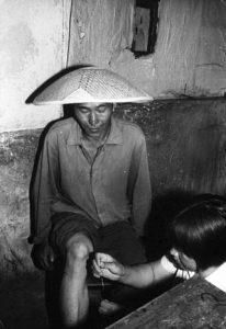 Un médico descalzo practicando acupuntura sobre un paciente.